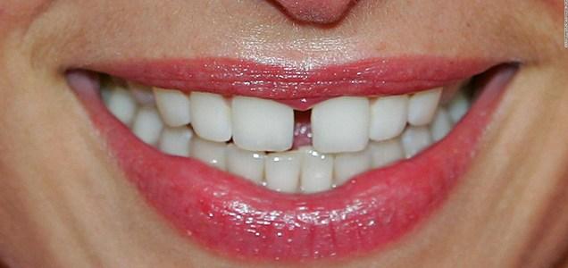Qué relación puede haber entre la pandemia del covid-19 y el notable aumento de dientes fracturados?