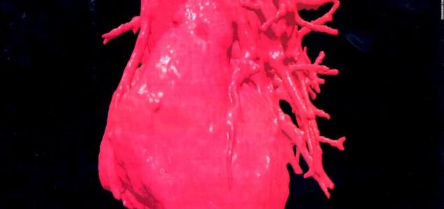 El impacto del covid-19 en los problemas cardíacos en mujeres hispanas