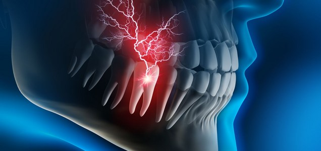 Gli effetti del Covid sui denti. I problemi non riguardano i malati
