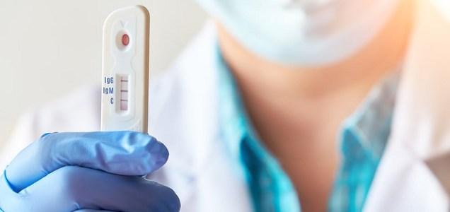 L'immunità contro la CoViD-19 potrebbe avere vita breve