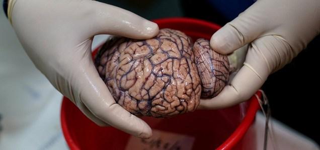 Cuál es el efecto cognitivo del COVID? El cerebro de algunos pacientes podría envejecer hasta 10 años