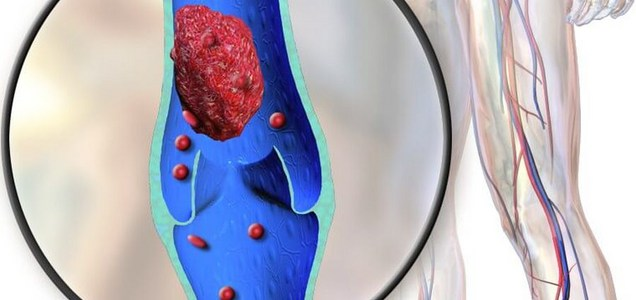 Más allá de los pulmones: Estudio revela los 35 efectos del coronavirus en el cuerpo humano